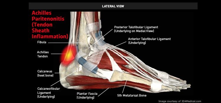 Ankle_AchillesParitenonitis_large