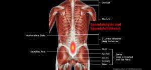 Back_SpondylolysisSpondylolisthesis_larg
