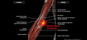 Elbow_MedialElbowInstability_Large