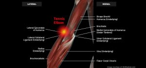 Elbow_TennisElbow_Large