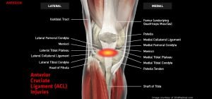 Knee_ACL_large