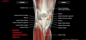 Knee_MCL_large