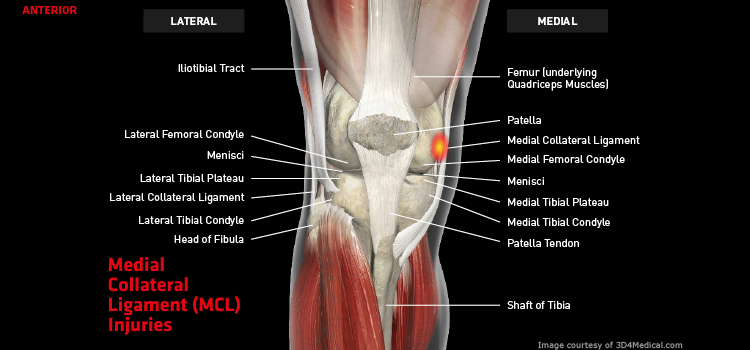 Knee Mcl Large