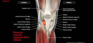 Knee_pCL_large