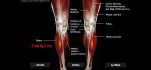 Legs_ShinSplints_large