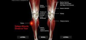 Legs_SoleusMuscleStrainorTear_large