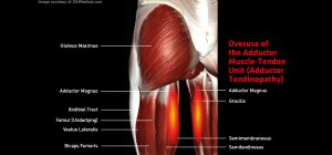 Thigh_AdductorTendinopathy_large