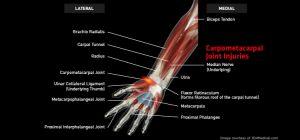 Wrist_CarpometacarpalJointInjuries_large