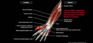 Wrist_LateralUlnerLigamentInjuries_large